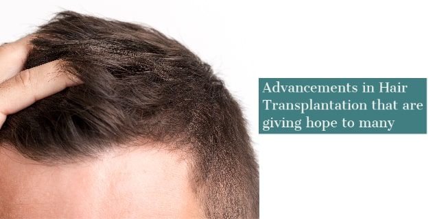Advancements in Hair Transplantation that are giving hope to many